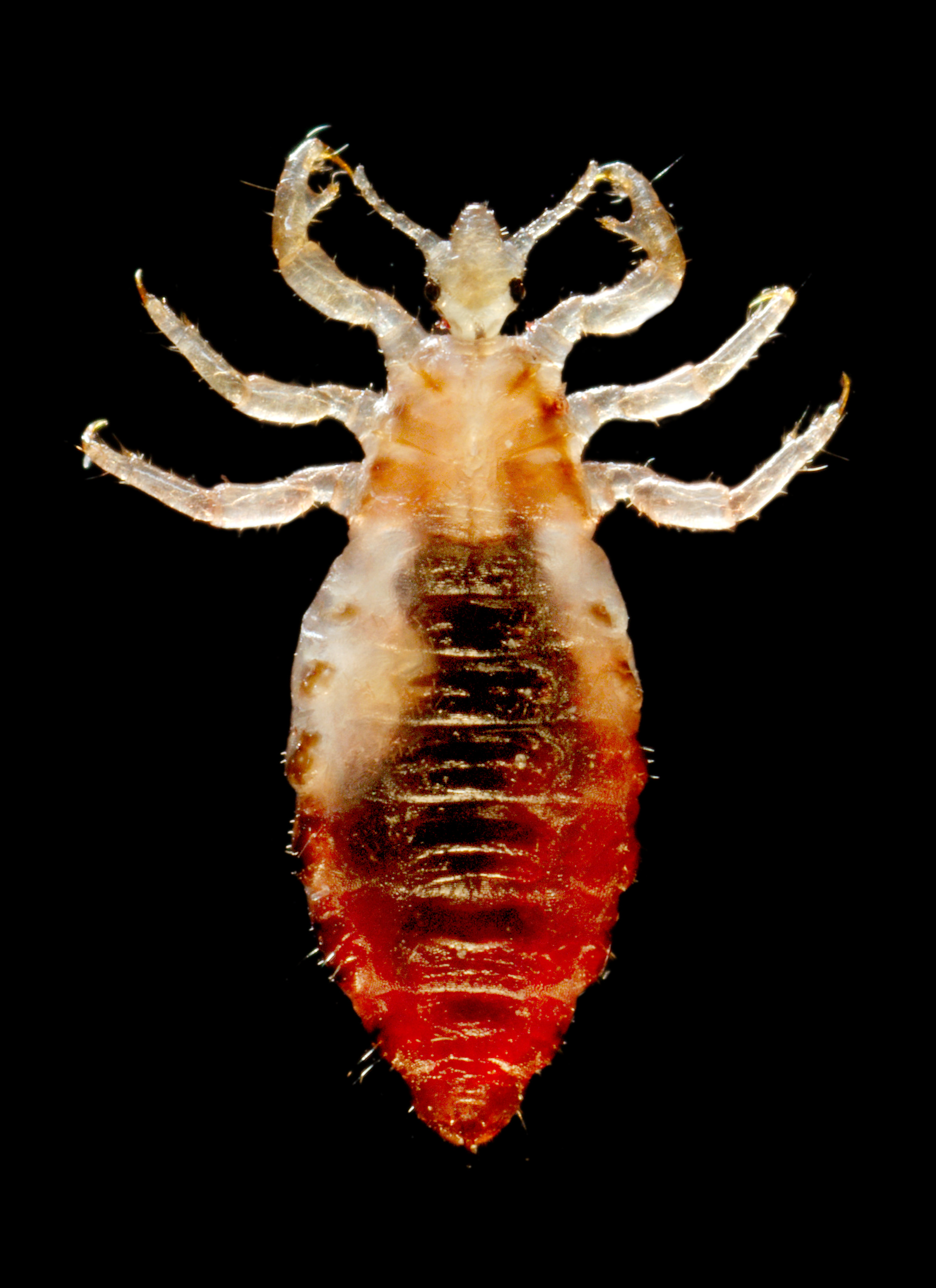 Close up of a louse, positioned as if for scientific examination on a slide
